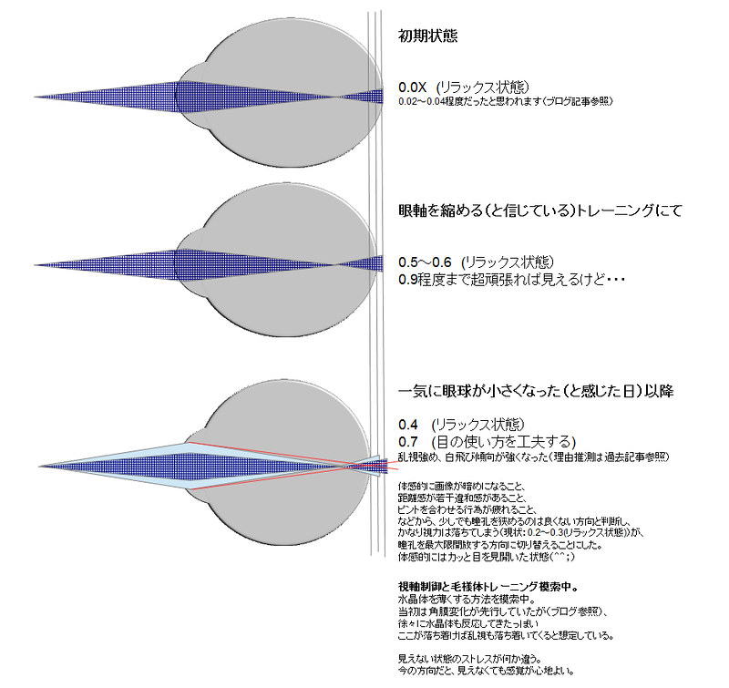 眼球形状と視力の変化03