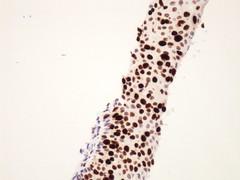 Lesión intraepitelial escamosa de alto grado (HSIL)