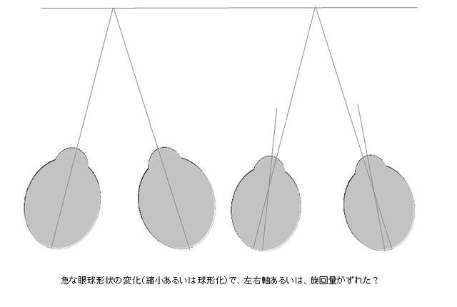 眼球形状と視力の変化02