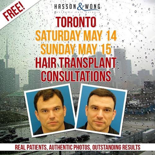 hair-transplant-toronto-fb