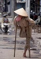 thuong_binh_bo_doi00