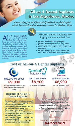 All on 4 Dental Implants in Los Algodones, Mexico
