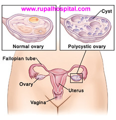 What is Polycystic Ovarian Syndrome (PCOS)?