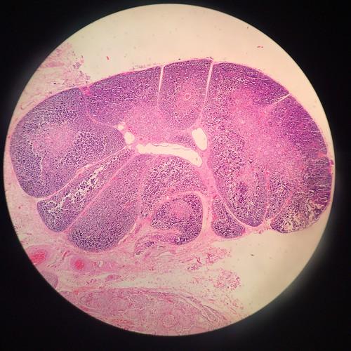 Corte de cuello fetal 61, amígdala