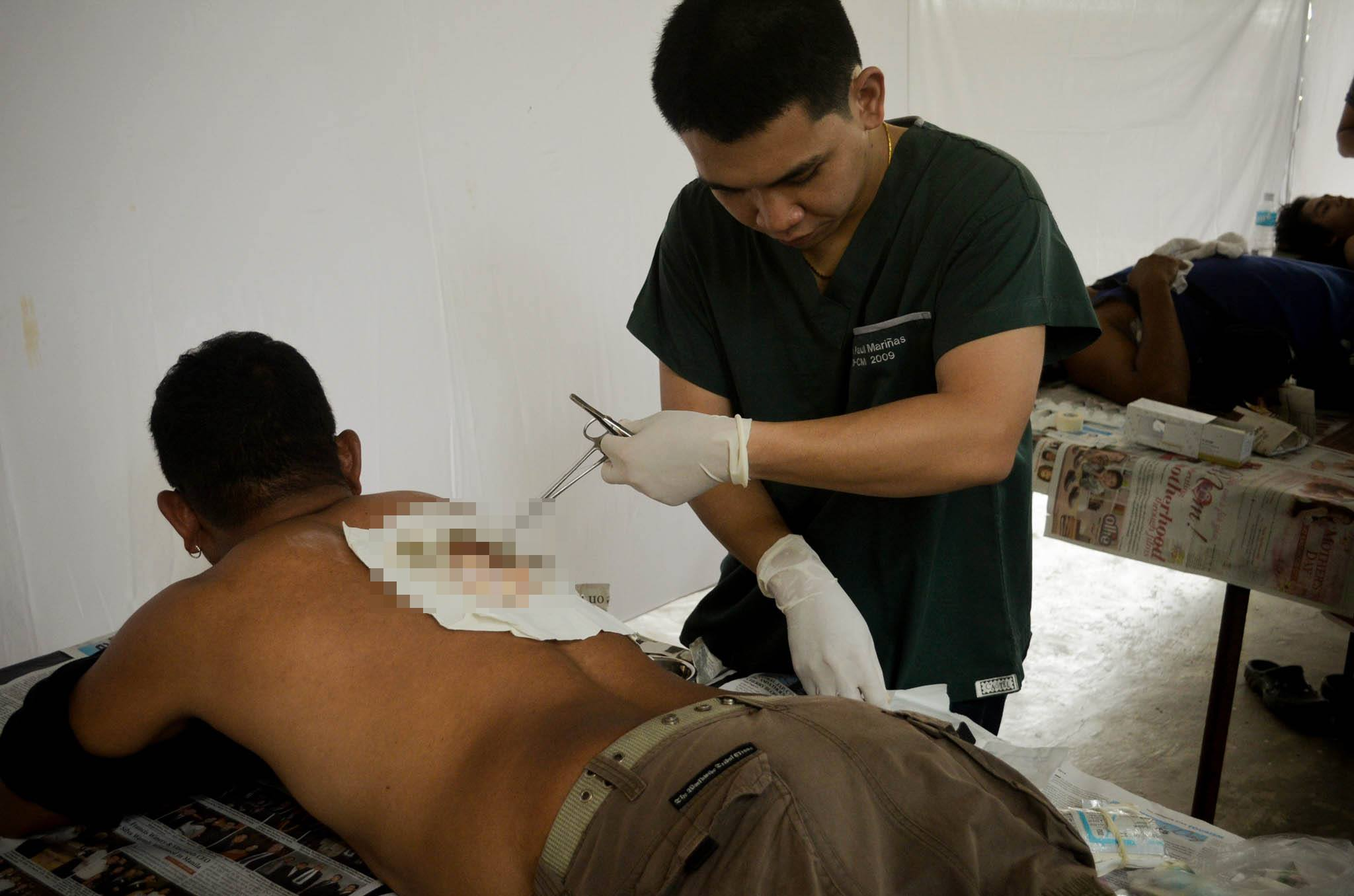 "Dr. John Paul Emerson Serrato Mariñas, Φ2004B, performing an excision at ""Araw ni Inang"""