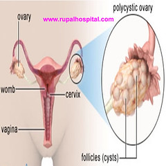 Pcos Treatment, Polycystic Ovarian Syndrome Treatment Clinic India