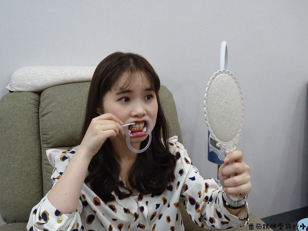 Dr曾淨白美齒專家 (23)