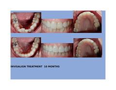 Invisalign Dentist Dallas TX