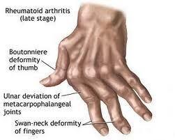 Rheumathoid arthritis, penyakit yang menyebabkan jari tangan kaku dan sakit
