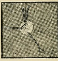 This image is taken from Page 140 of The physiology and pathology of the cerebral circulation; an experimental research