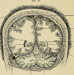 This image is taken from Page 170 of The physiology and pathology of the cerebral circulation; an experimental research
