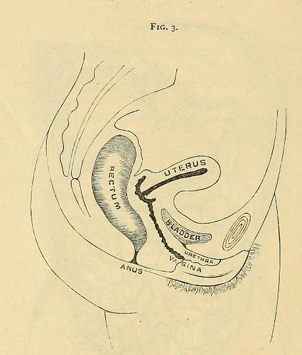 This image is taken from Page 44 of Nursing in abdominal surgery and diseases of women. A series of lectures delivered to the pupils of the training school for nurses connected with the Woman's hospital of Philadelphia, comprising their regular course of