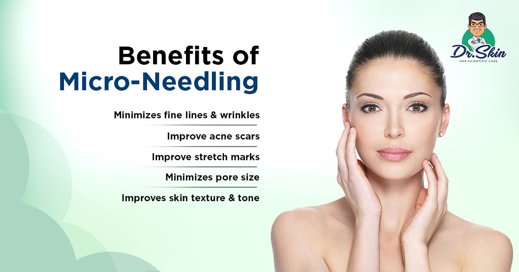 Microneedling | Microneedling is a great option for anyone w