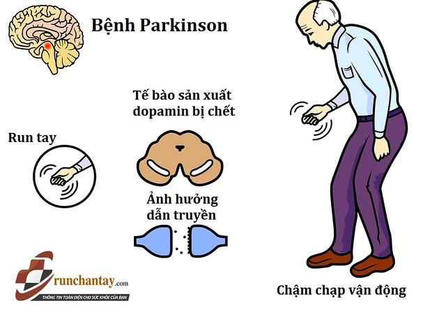 Parkinson là một trong những nguyên nhân thường gặp gây run tay ở người lớn tuổi
