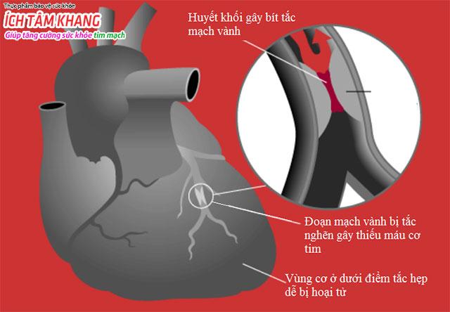Cục máu đông trong lòng động mạch vành gây tắc nghẽn dòng máu đến nuôi tim