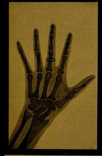 This image is taken from La photographie de l'invisible : les rayons X suivi d'un glossaire