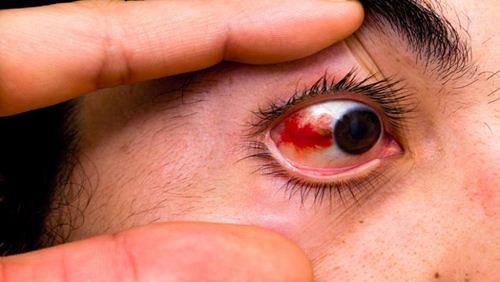 Gejala dan Faktor Penyebab Penyakit Mata Merah