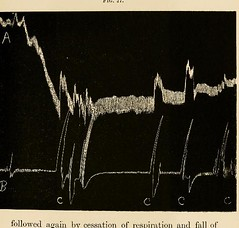 This image is taken from Page 127 of The physiology and pathology of the cerebral circulation; an experimental research