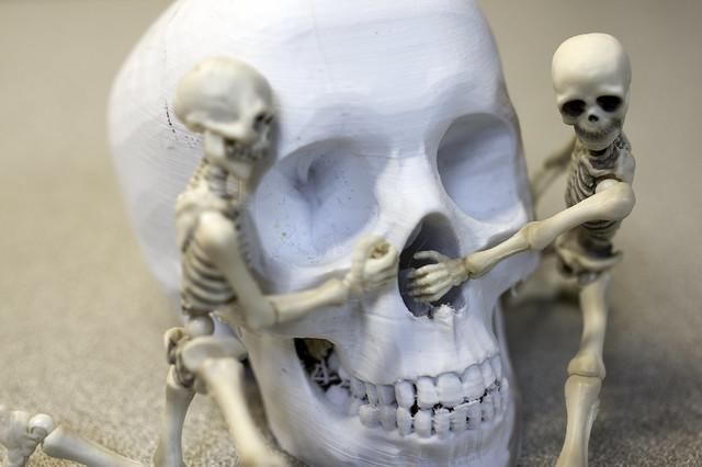Skulldiggery