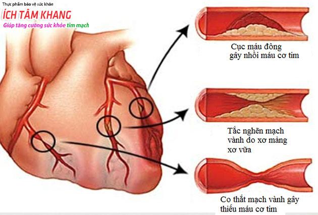 Hình ảnh tim và các hình thái của động mạch vành gây thiếu máu cơ tim, nhồi máu tim