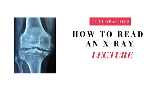 How to read and describe an x-ray of a fracture - Detailed overview