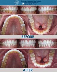 Smile Makeover Dallas TX