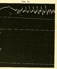 This image is taken from Page 168 of The physiology and pathology of the cerebral circulation; an experimental research