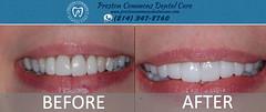 Teeth Whitening Dallas TX