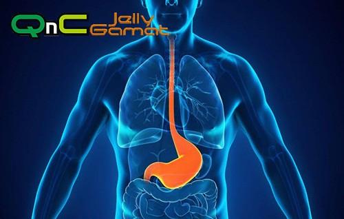 QnC Jelly Gamat Untuk Asam Lambung
