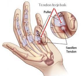 trigger finger penyebab jari tangan sakit tidak bisa di tekuk atau diluruskan