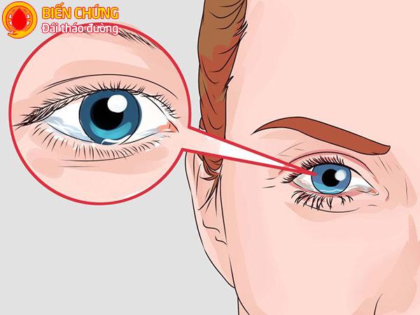 Kiểm tra thị lực thường xuyên