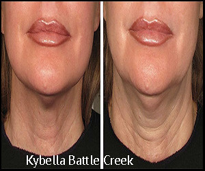 Kybella in Michigan