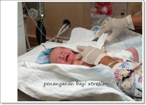 Penanganan Bayi Atresia Sesuai Arahan Dokter