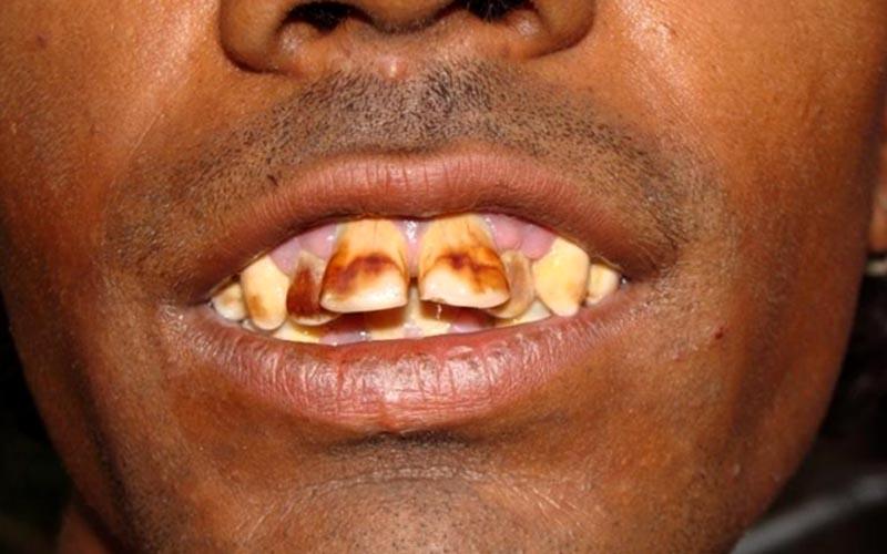 युवक के दाँतों पर हाइड्रो-फ्लोरोसिस का दुष्प्रभाव