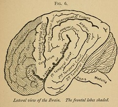 This image is taken from Page 59 of On failure of brain power (encephalasthenia); its nature and treatment