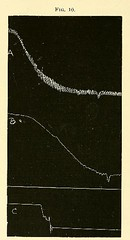 This image is taken from Page 60 of The physiology and pathology of the cerebral circulation; an experimental research