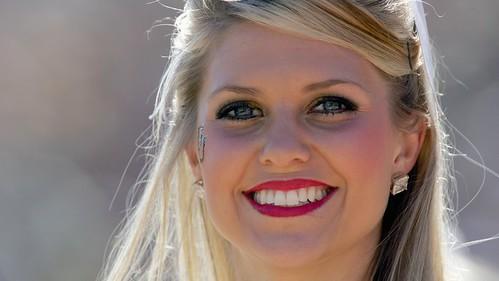 Teeth whitening hacks