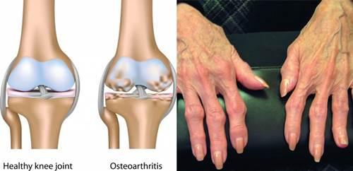 Osteoarthritis, penyakit yang menyebabkan jari tangan kaku dan sakit