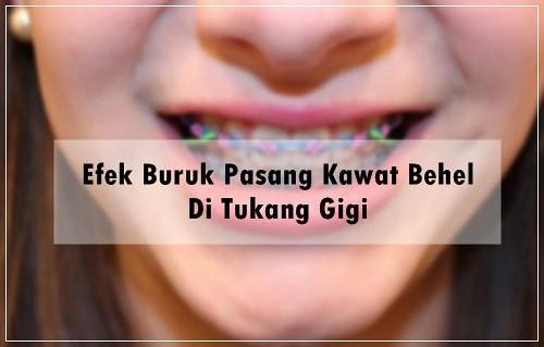 Efek Buruk Pasang Kawat Behel Di Tukang Gigi