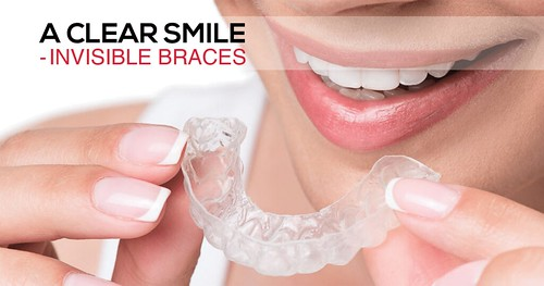 A Clear Smile – Invisible Teeth Braces