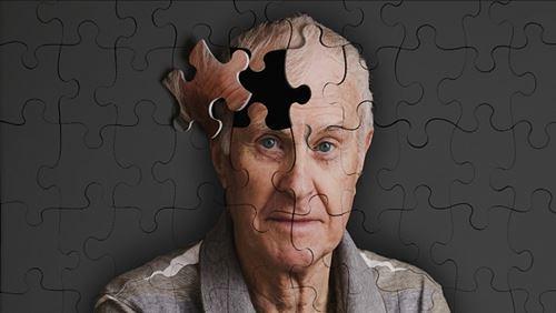 Penyakit Alzheimer – Penyebab, Gejala, dan Bahayanya