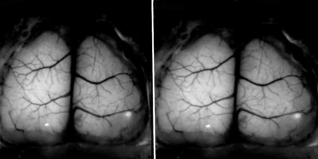 maladie-image-crâne-3D