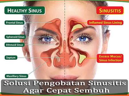 Obat Sinusitis Yang Di Jual Di Apotik k24
