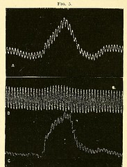 This image is taken from Page 44 of The physiology and pathology of the cerebral circulation; an experimental research