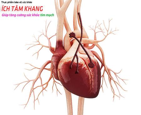 Phẫu thuật bắc cầu động mạch vành giúp cải thiện lượng máu tới cơ tim